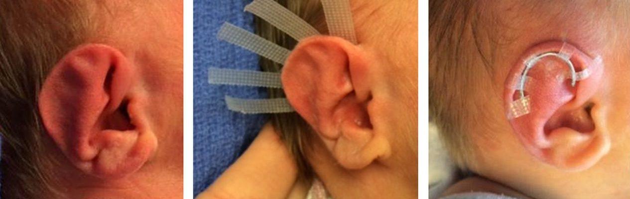 Elf Ear Surgery